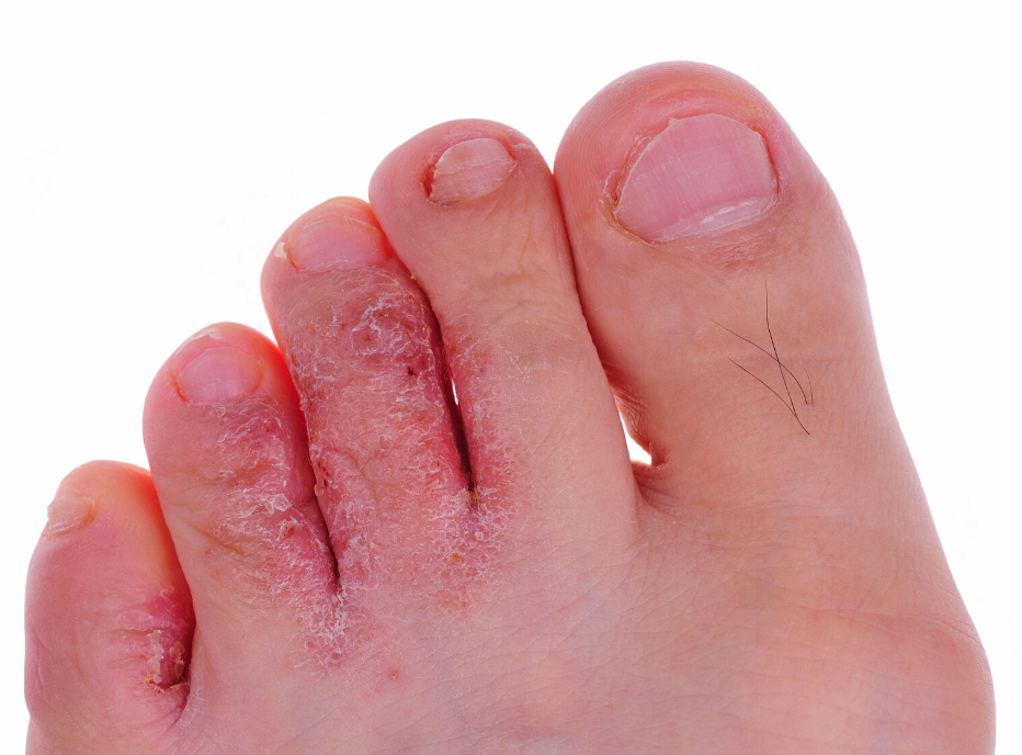 Athlete's Foot (Tinea Pedis)