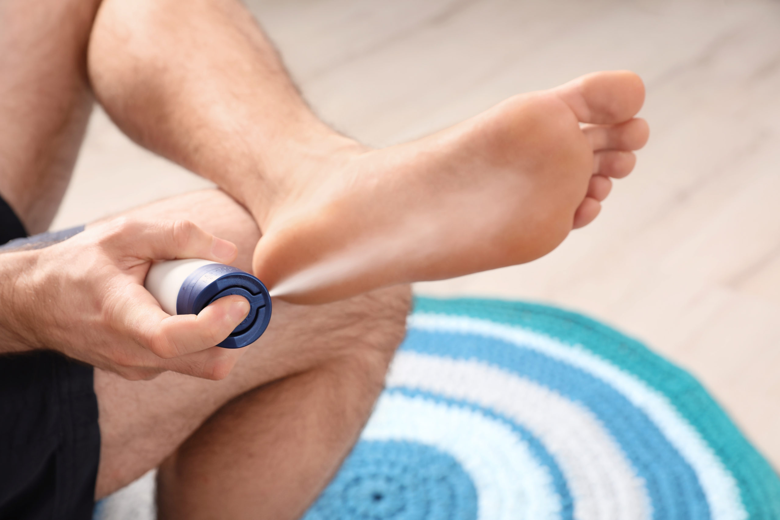 Excessive feet sweating