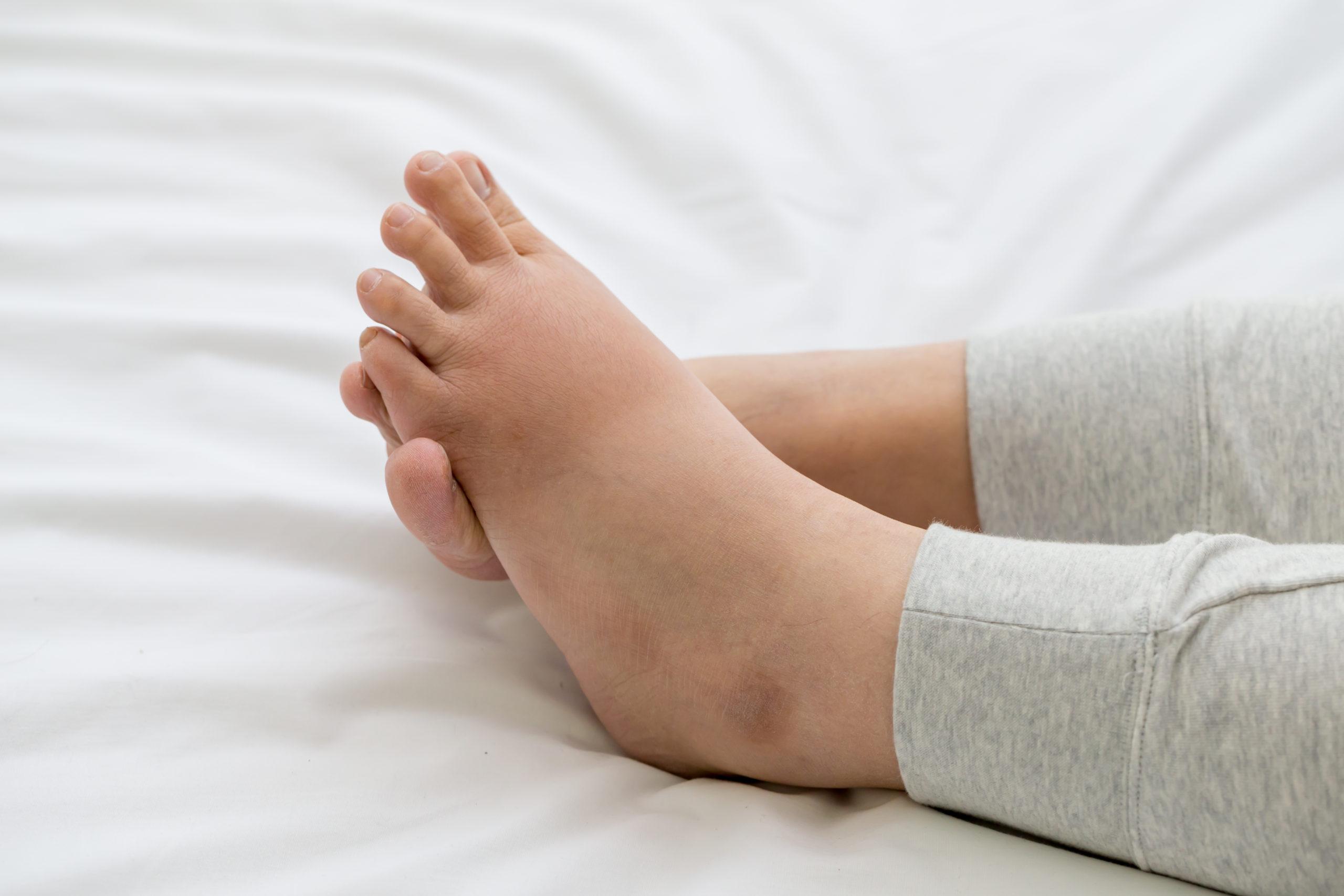 Swollen ankles when flying