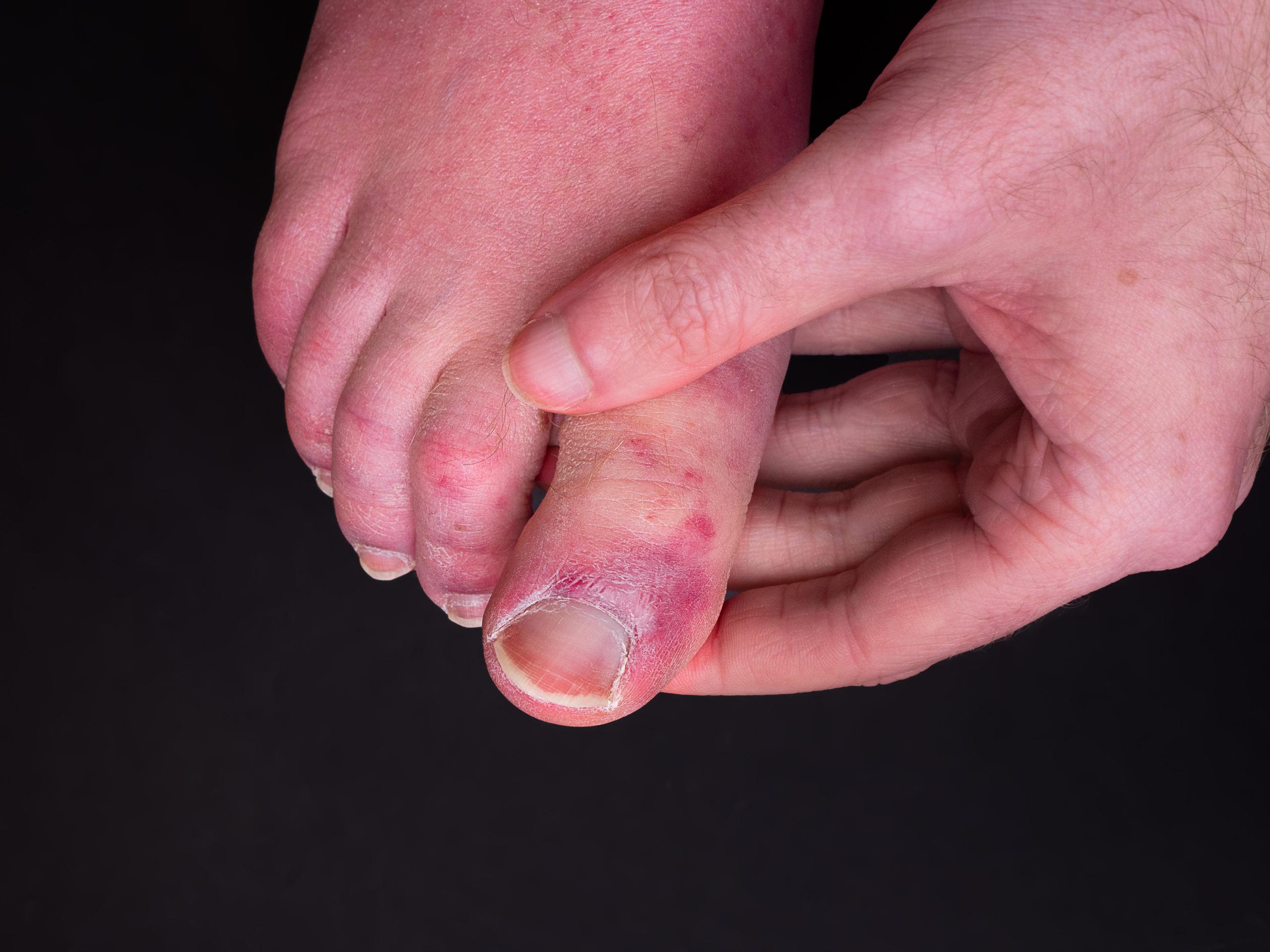 Dark spots on toes