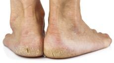 Cracked Skin Heels