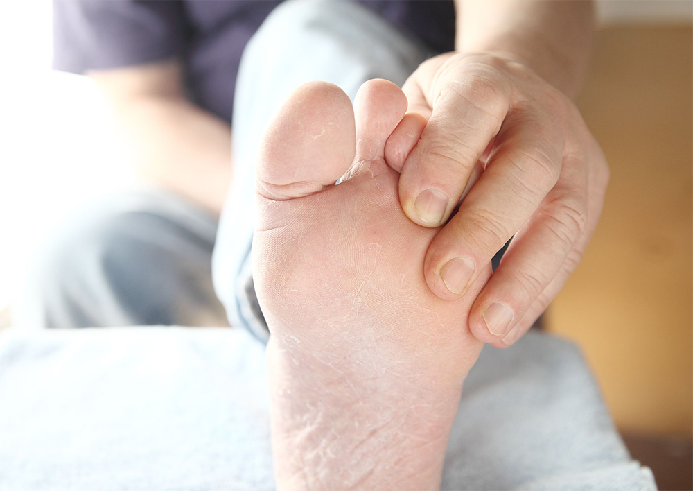Diabetic checks foot skin and nails