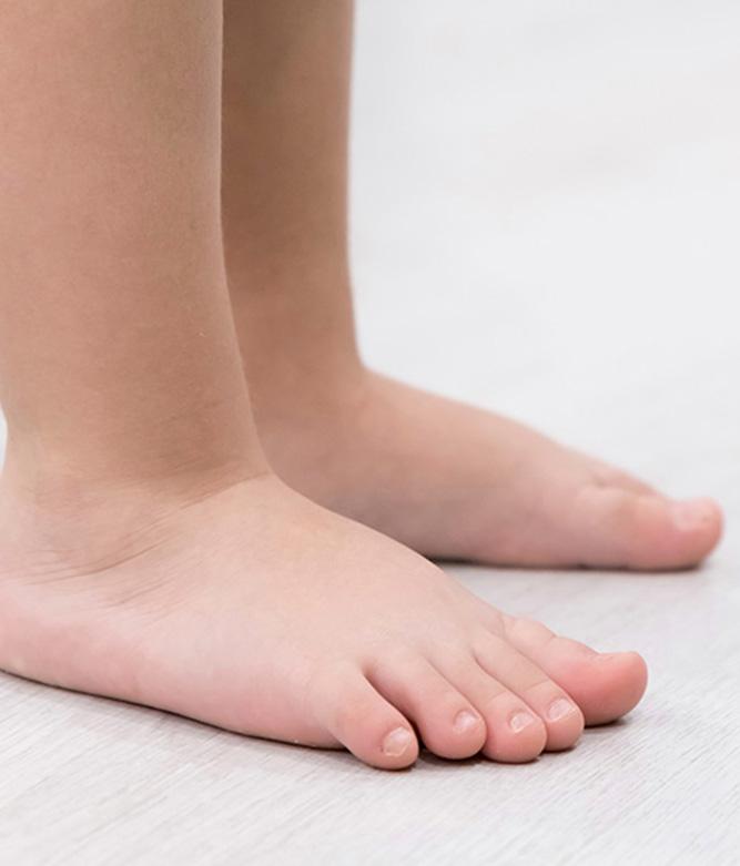 Children Flat Feet