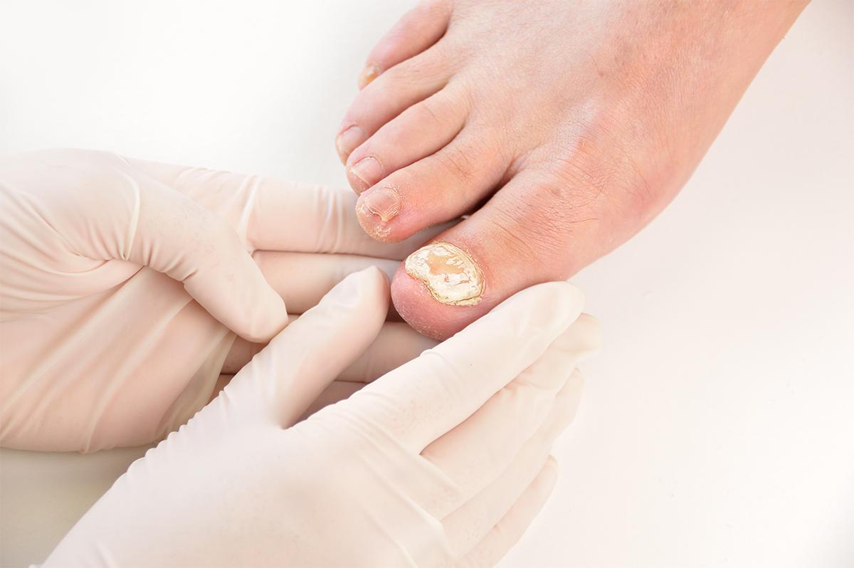 Fungal Nail Podiatrist