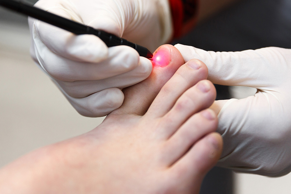 Fungal Nail Laser Therapy My FootDr