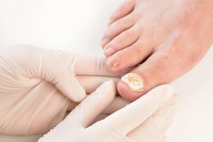 My FootDr Fungal Nail Laser