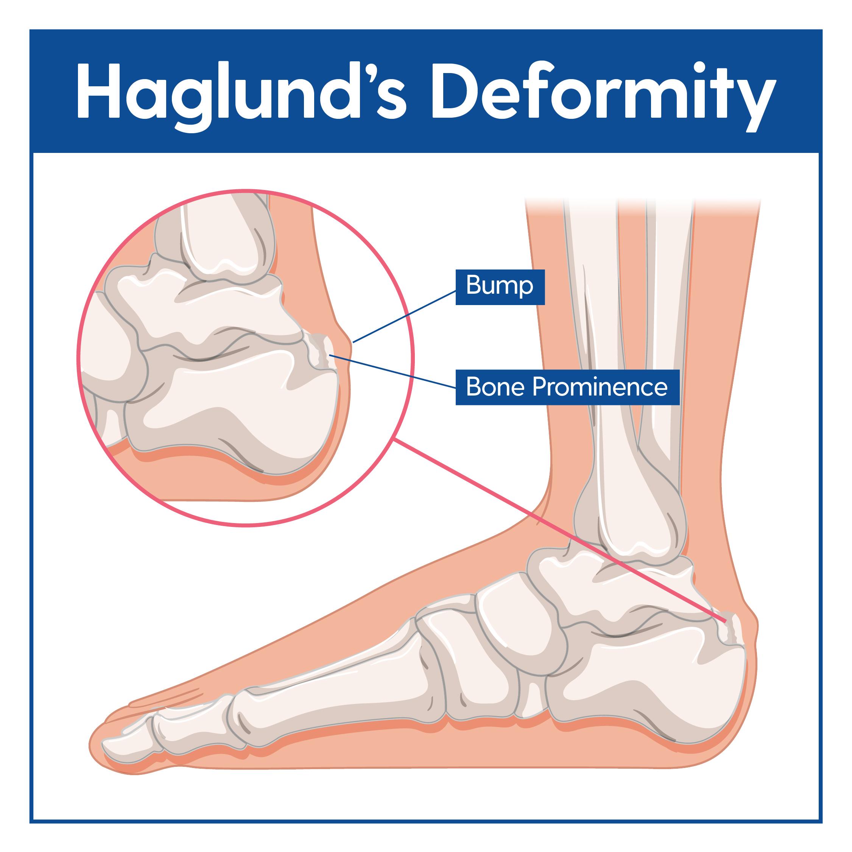Haglund's Deformity Causes & Treatment