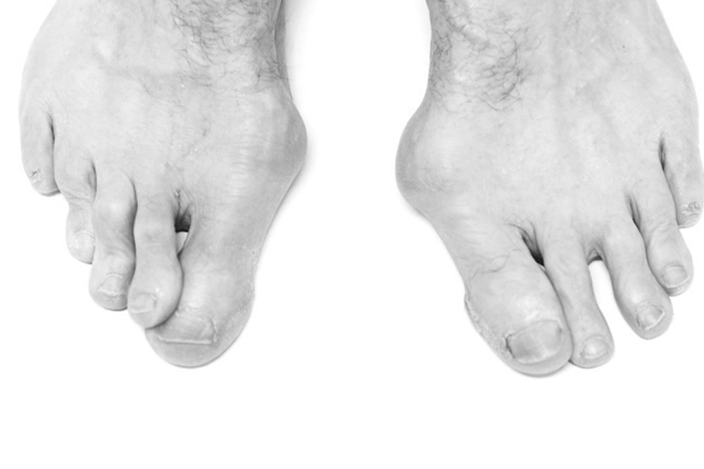 Hammer Toes Treatment