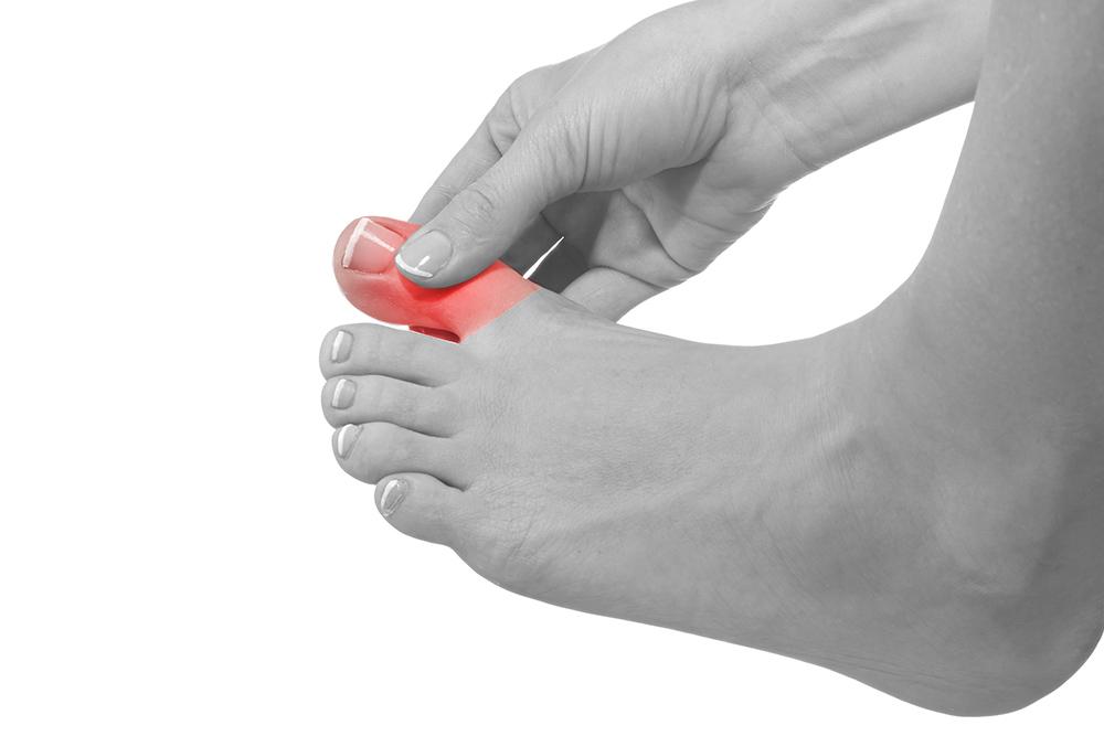 Ingrown Toenails – My FootDr