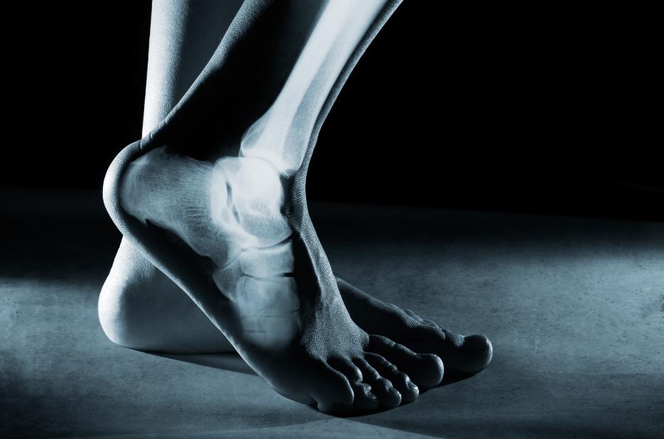 Anterior Ankle Impingement Treatment & Causes