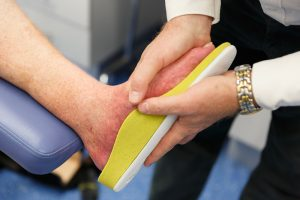 myPedorthist Exacta3D fitting orthotics for Charcot's Foot patient