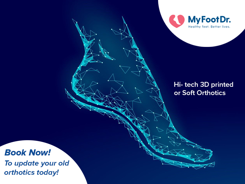Hi-Tech 3D Printed Foot Orthotics