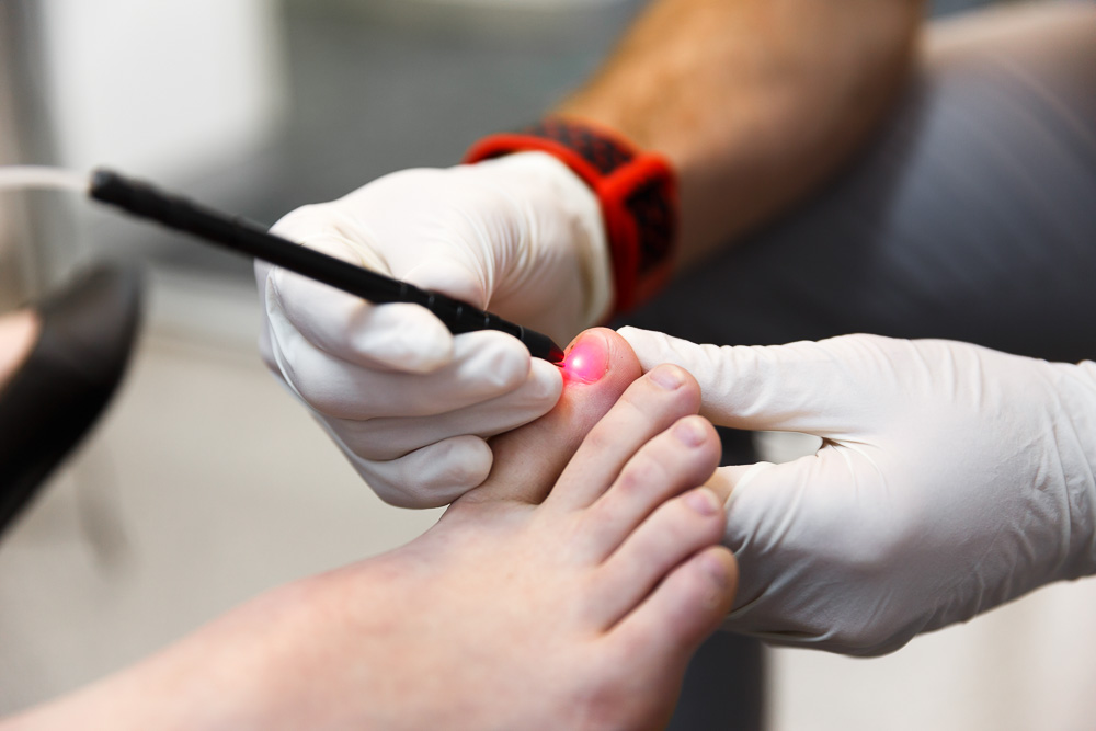 Laser treatment for onychomycosis (fungal nails)