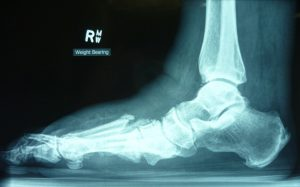 X-ray of patient with Charcot's Foot