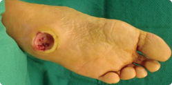 Diabetic Foot Ulcer in Charcot's Foot Patient