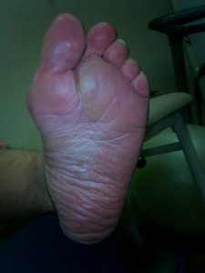 Sole of Down Syndrome Foot