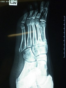 Islin's Disease X-ray