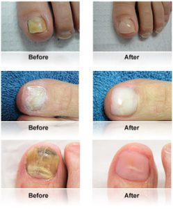 KeryFlex Nail Restoration Before & After