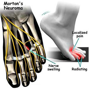 Mortons Neuroma Diagram