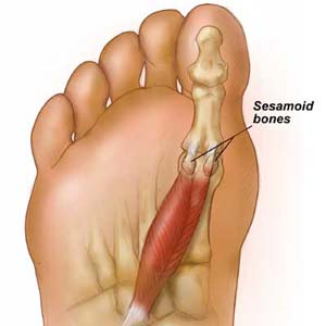 Sesamoiditis Diagram