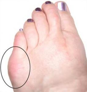 Tailors Bunion Foot health podiatry