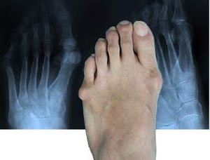 Tailor's Bunion X-ray