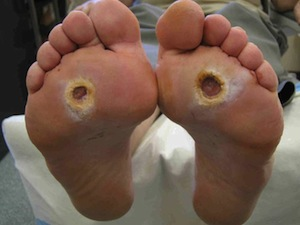 Diabetic Ulcers on Feet